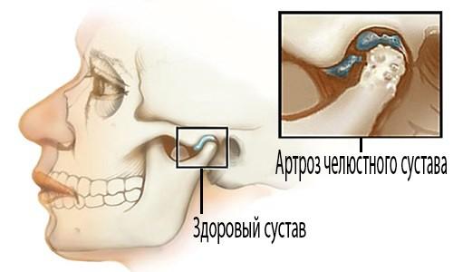 Как выглядит челюстной артроз