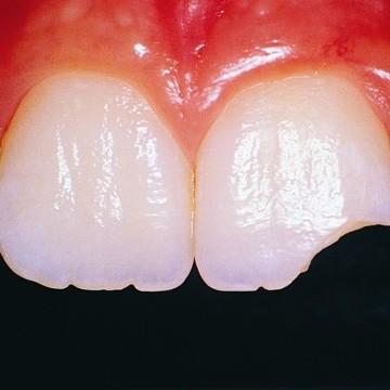 Наращивание зуба пломбировочным материалом
