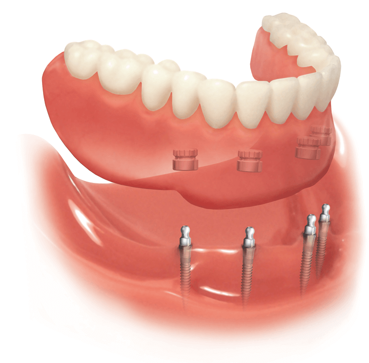 Удаление всех зубов под протез