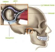 Изображение - Диск челюстного сустава 1328_smeschenie-sustavnogo-diska